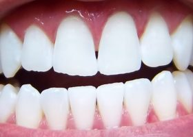 Whitening: Example One